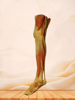 Superficial muscles of lower limb plastinated specimen