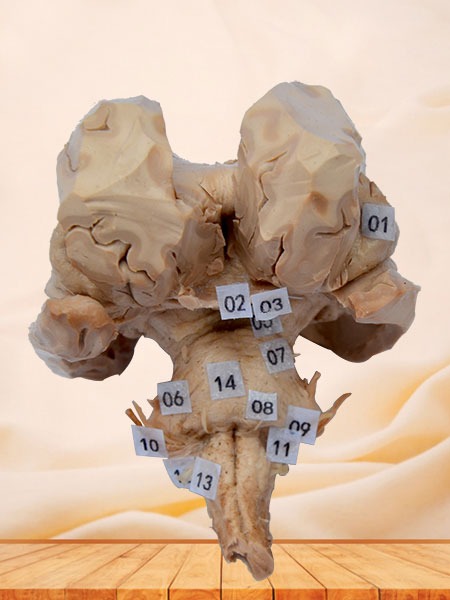 Brain stem plastination specimen
