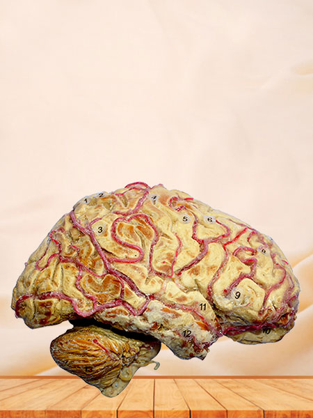 Cerebral hemisphere and brain stem
