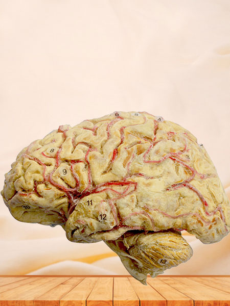 Cerebral hemisphere and brain stem plastination