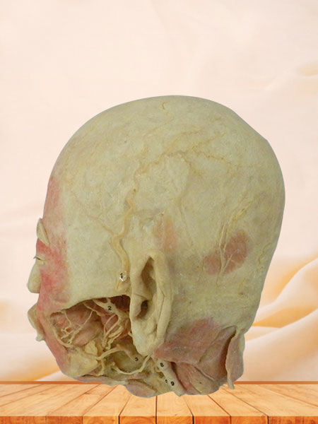 Deep vascular nerve of head and face