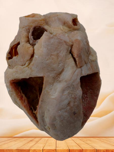 Heart(Heart specimen with ventricles opened to expose the valves)