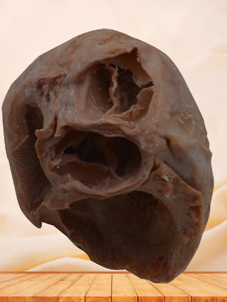 Heart(Heart specimen with ventricles opened to expose the valves)plastinated specimen