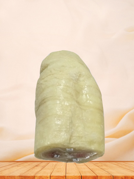 Horizontal section of penis