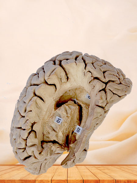 Human hippocampal formation plastination