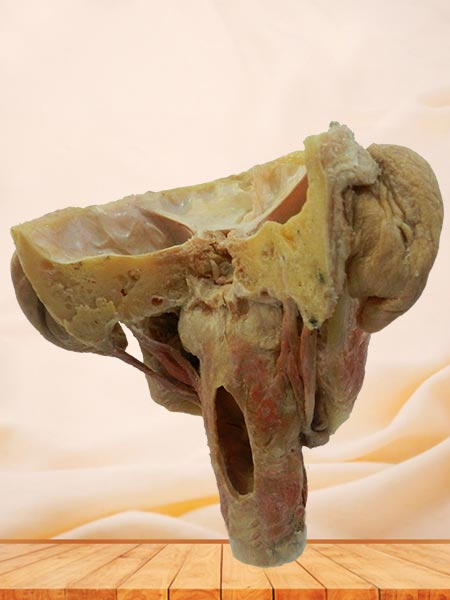 Posterior of pharyngeal muscles plastination specimen