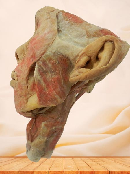 Posterior of pharyngeal muscles specimen