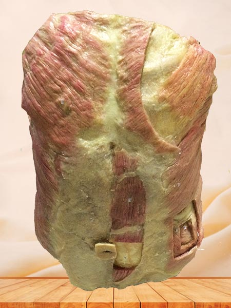 The front view of the chest wall plastination specimen