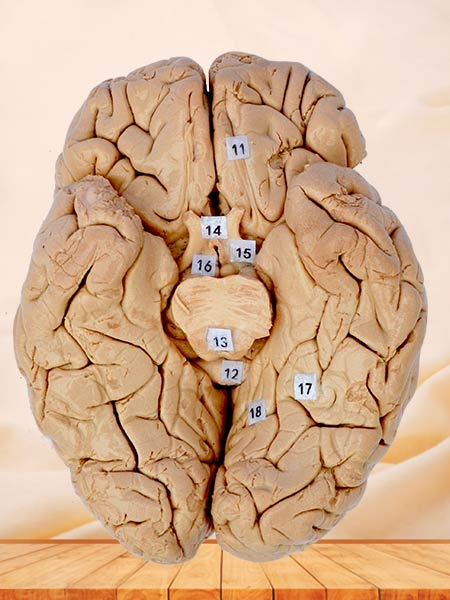 The horizontal section of brain plastinated specimen