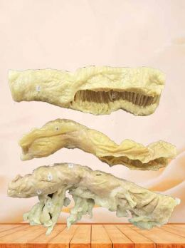 Comparison of ileum colon colon plastinated specimen