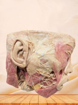 Facial nerve with its branches plastinated specimen