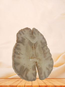Horizontal section of brain through inner capsule plastinated specimen
