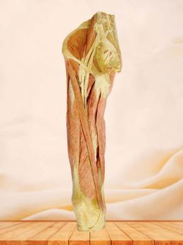 Superficial muscles of thigh plastinated specimen