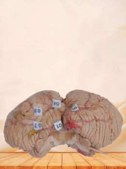 Artery of cerebellum plastinated specimen