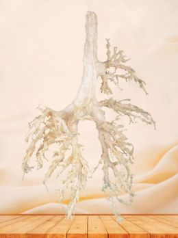 Bronchial tree of cow plastinated specimen