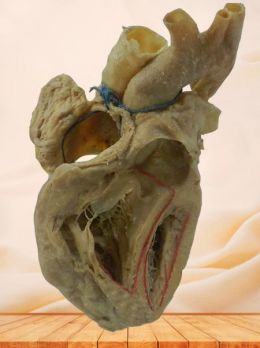 Conduction system of heart plastinated speciemen