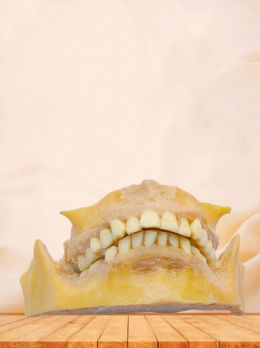 Permanent teeth plastinated specimen