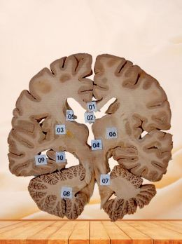 Coronal section of human brain plastinated specimen