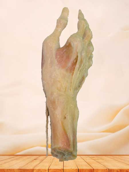 Superficial muscles of hand plastination