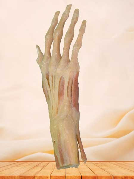 hand muscle plastination