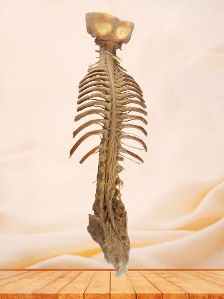 Spinal cord with nerves in vertebral column