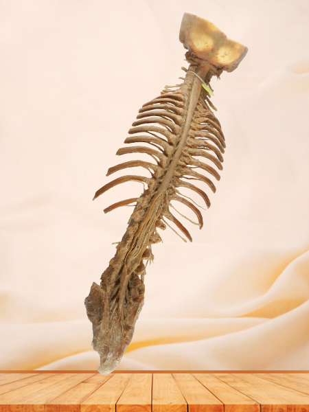 Spinal cord with nerves in vertebral column plastination