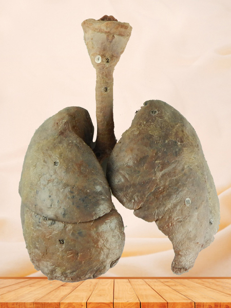lung and larynx medical specimen