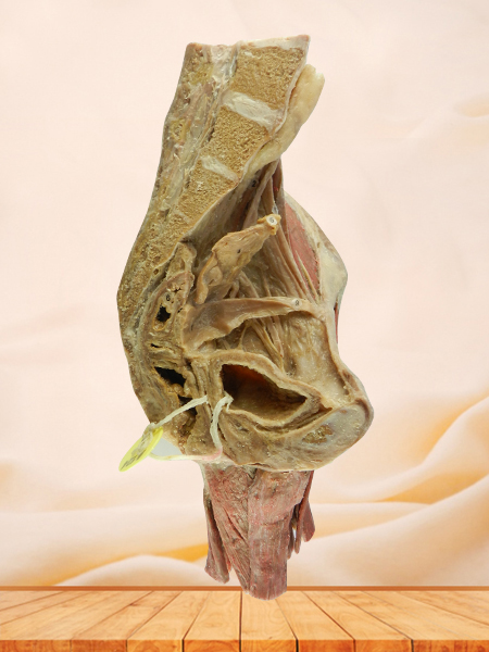 sagittal section of female pelvis with uterus vessels for sale