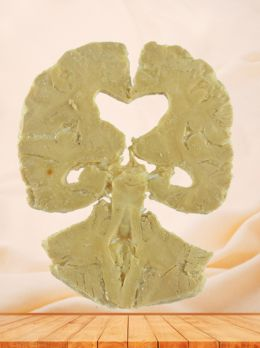 Coronal section of human brain plastination with 5 parts