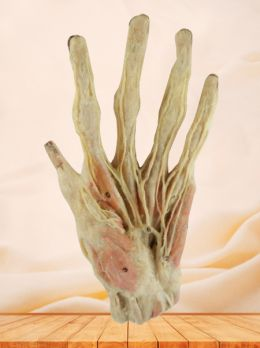 Superficial arteries of hand plastinated specimen