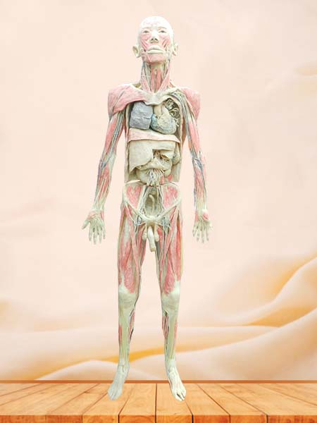 Whole body plastinaton