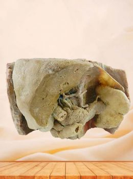 Liver spleen pancreas  and duodenum plastinated anatomy specimen