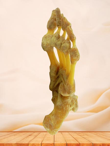 foot joint medical specimen