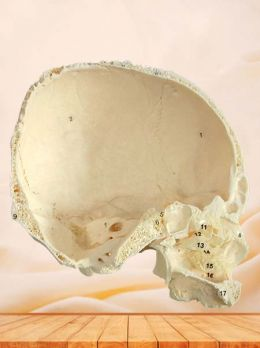 Lateral wall of nasal cavity specimen(sagittal section of skull)