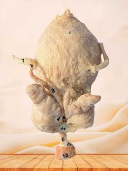 Urinary bladder, prostate, seminal vesicle and urethral gland plastinated specimen