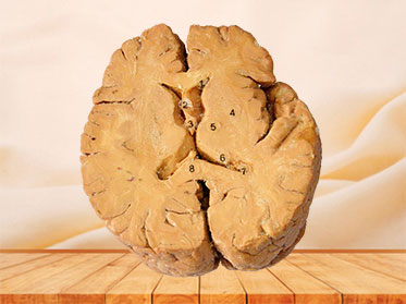 Horizontal section of human brain plastinated specimen