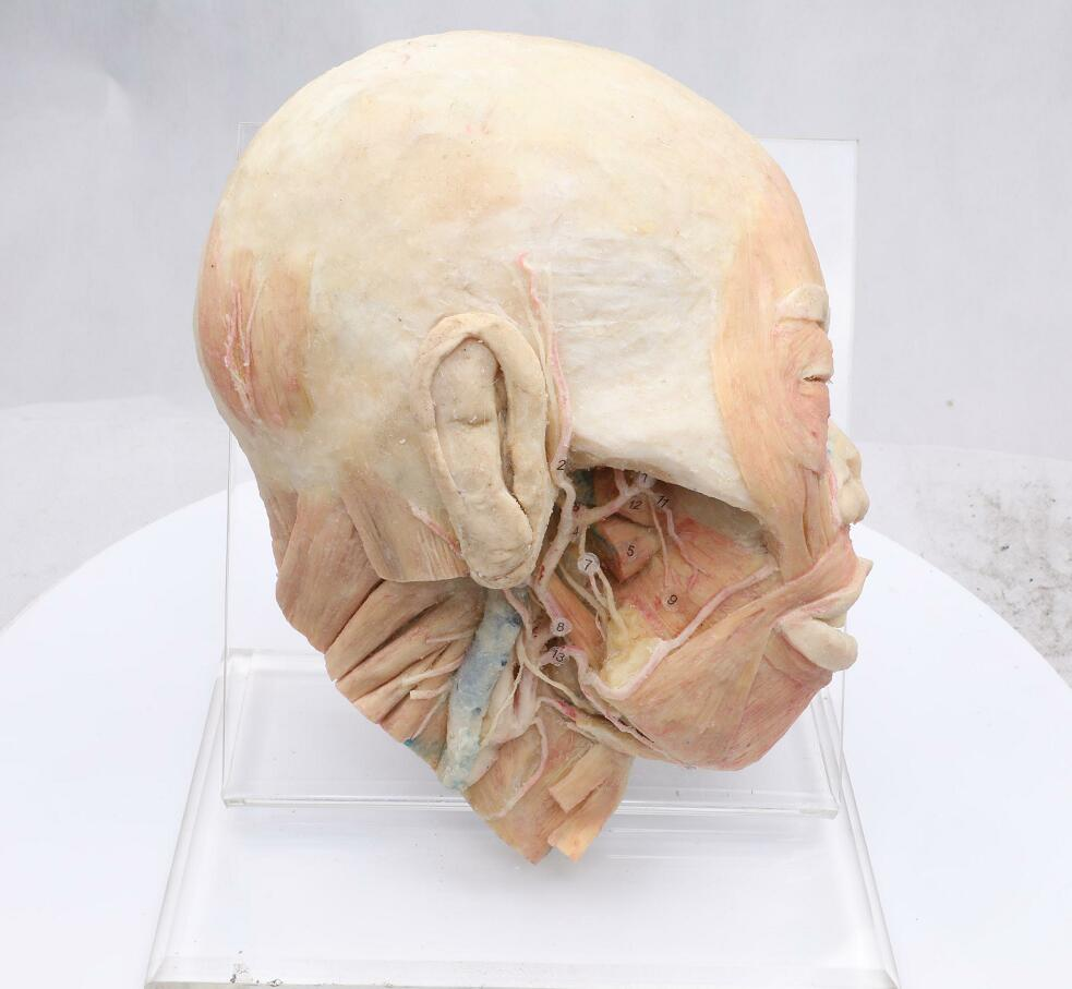 superficial muscles of head and neck plastinated specimen