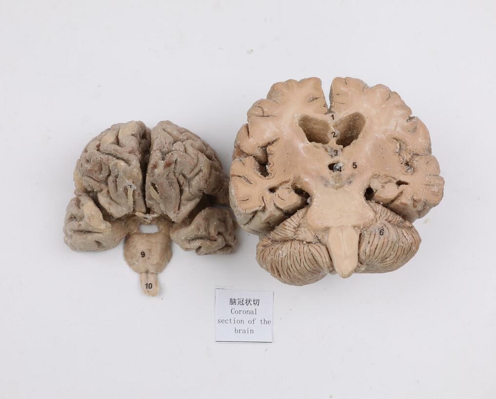 plastianted brain