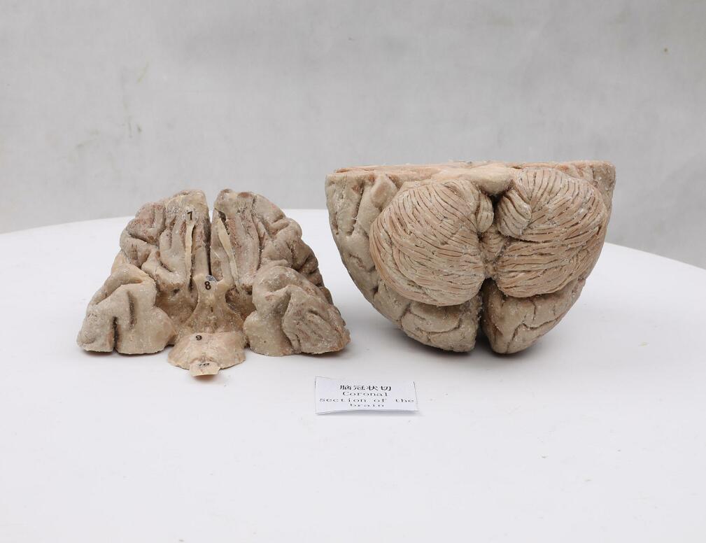plastinated human brain