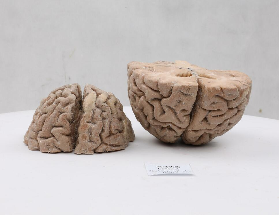 coronal section of plastinated brain
