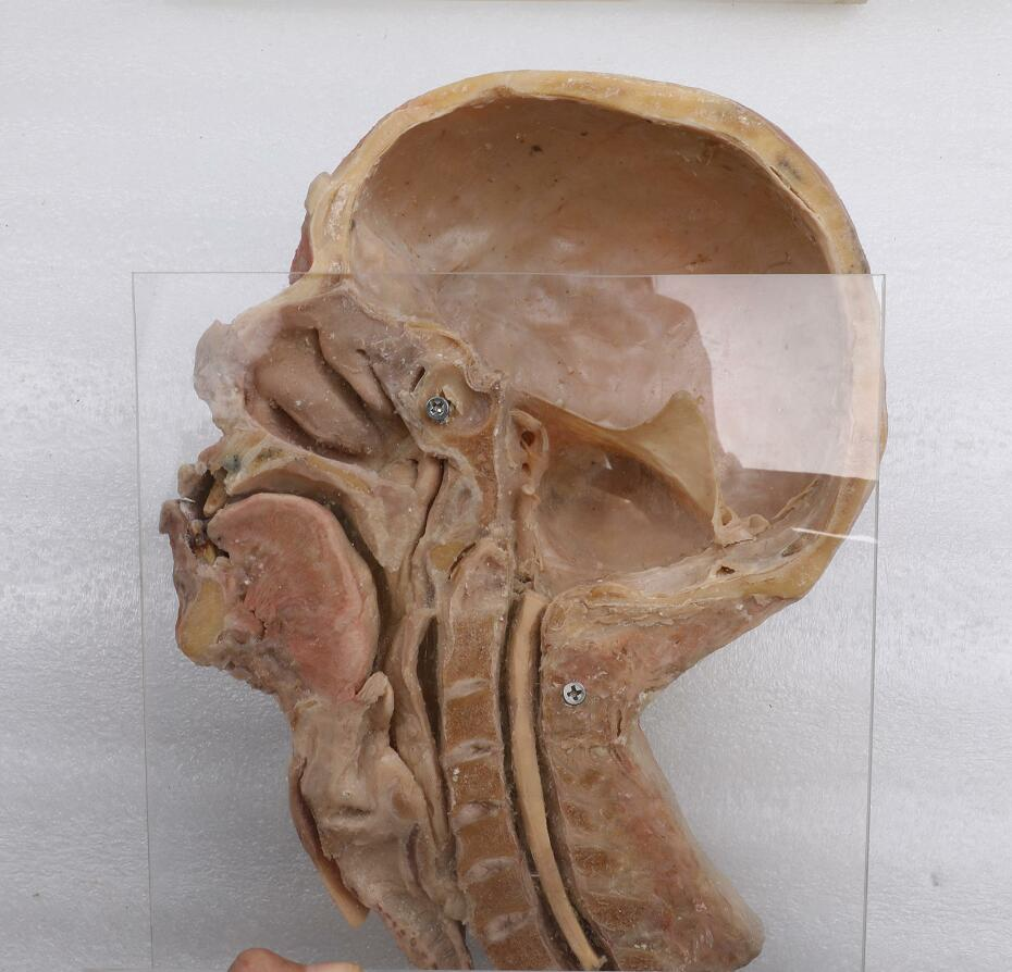head and neck plastinated model