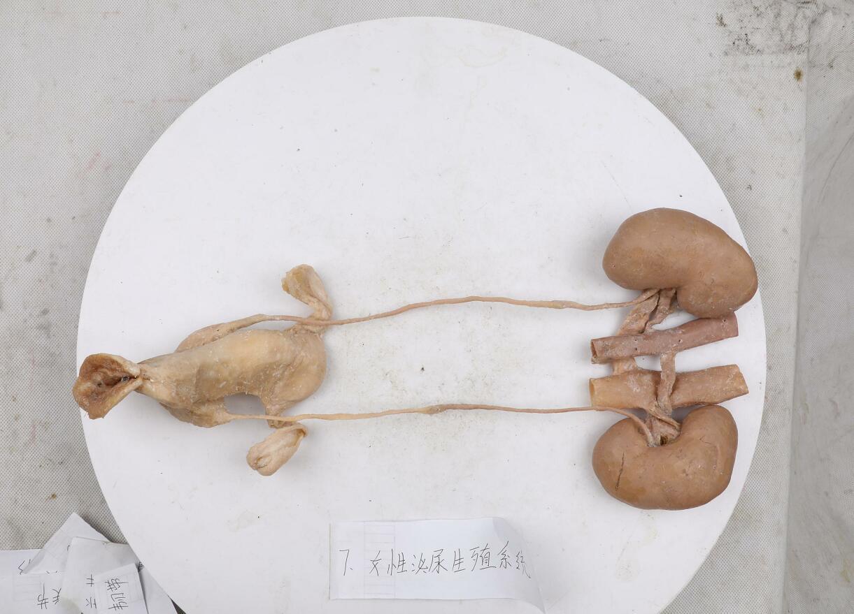 plastinated female urogenital system
