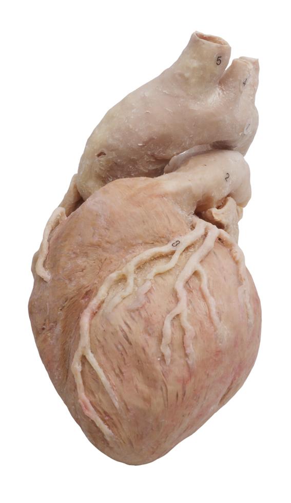 plastinated heart