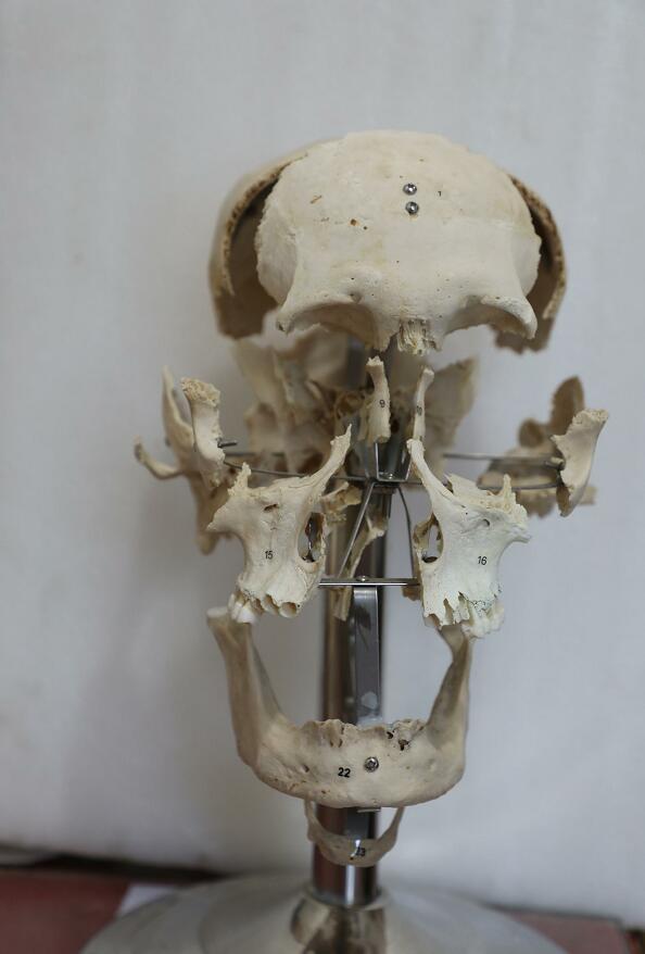 human skull bones
