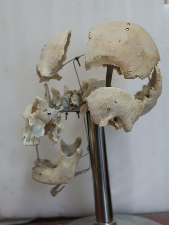 real human skull