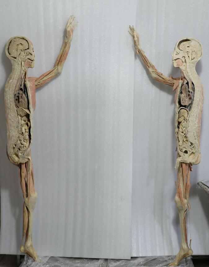 dissection of male body plastination