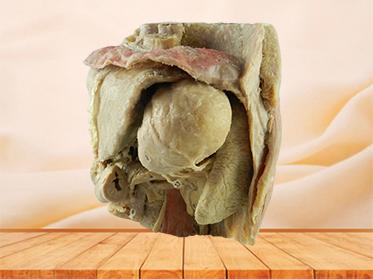 Abdominal viscera and caeliac trunk medical specimen