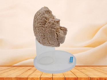 Arteries of base of brain plastinated specimen
