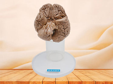 Arteries of base of brain plastination