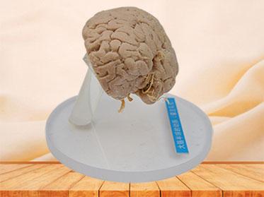 Artery of cerebral hemisphere